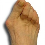 Bunion Pain Indiana https://www.achillespodiatry.com