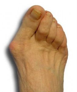 Bunion Pain Indiana https://achillespodiatry.com