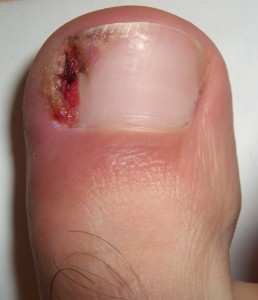 Ingrown nail indianapolis