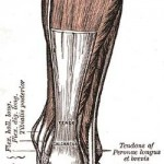 Achilles Tendon Indianapolis