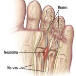 Mortons Neuroma Indianapolis