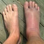 Ankle Sprain Indianapolis