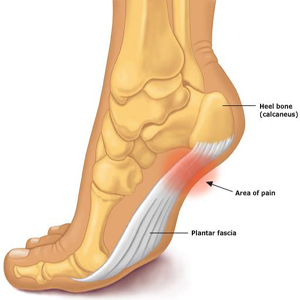 Do Shoes With A Higher Heel Help Hip Pain