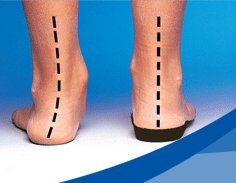 orthotics with and without