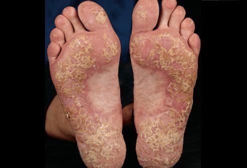 foot psoriasis