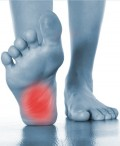 Foot Pain Indianapolis