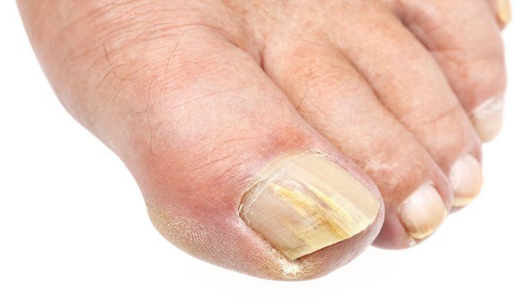 toenail fungus doctor