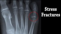 stress fractured foot indianapolis