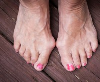 bunion treatment indianapolis