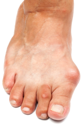 Bunion Treatment Indiana