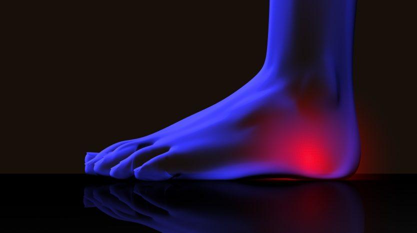 heel pain treatment indianapolis