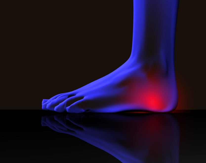 heel pain treatment indianapolis