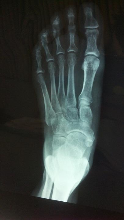 bone healing Indiana