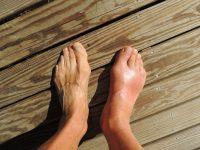 foot stress fracture Carmel